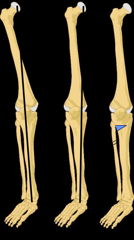 التخطيط لجراحات العظام