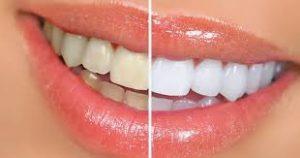 دراسة جدوى عيادة اسنان السعودية