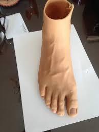 عمليات تجميل الأصابع المقطوعة
