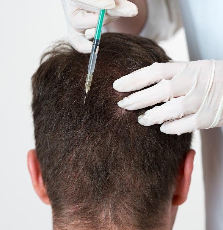 عيادات تساقط الشعر بالرياض