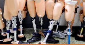 ألم بعد عملية تغيير مفصل الركبة