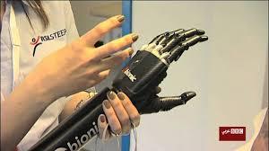 تركيب اليد الاصطناعية