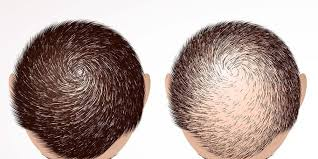 افضل دكتور لعلاج تساقط الشعر في جدة