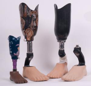 العلاج الطبيعي بعد عملية تغيير مفصل الركبةالعلاج الطبيعي بعد عملية تغيير مفصل الركبة