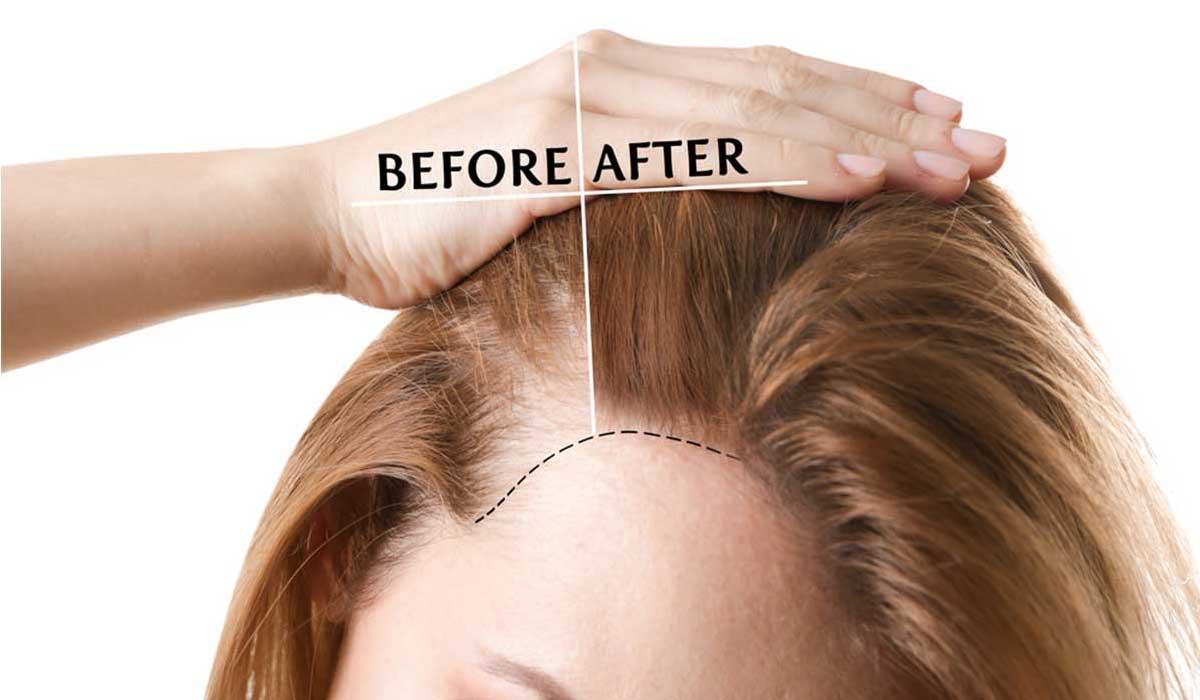 الفرق بين حقن البلازما لزراعة الشعر