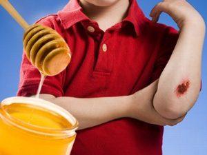 تجربتي مع العسل للجروح