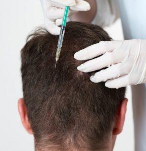 تكلفة علاج الشعر بالبلازما