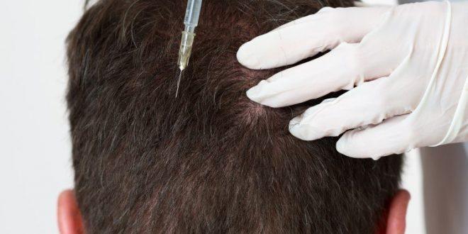 كم أبرة البلازما بعد زراعة الشعر