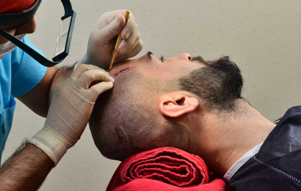 دكتور أخصائي جلدية الرياض