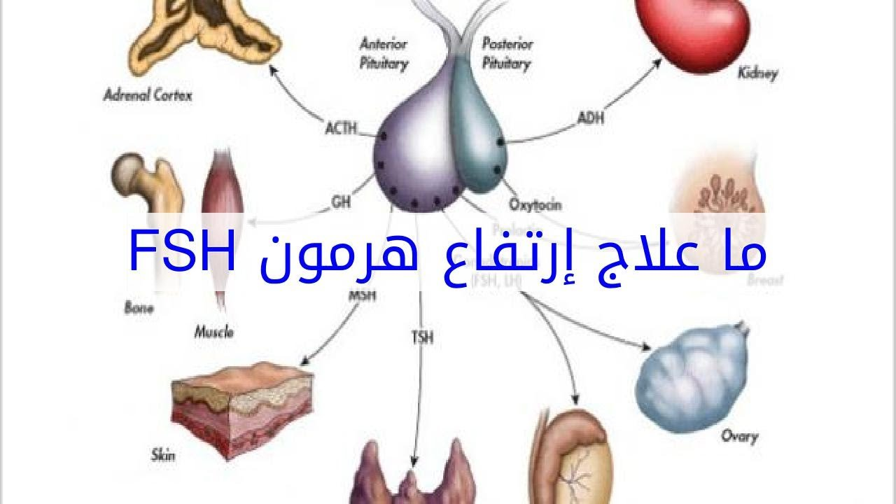 علاج ارتفاع هرمون fsh