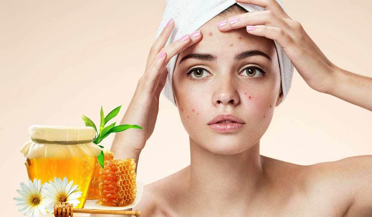فوائد العسل الابيض لعلاج حب الشباب