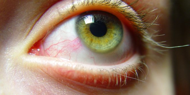 فوائد العسل لجفاف العين