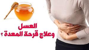 فوائد العسل لحموضة المعدة