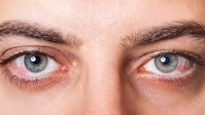 فوائد العسل لشبكية العين