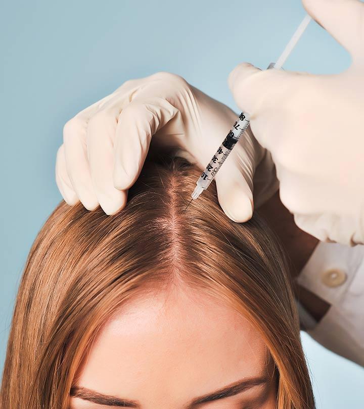 كيفية علاج الشعر بالبلازما