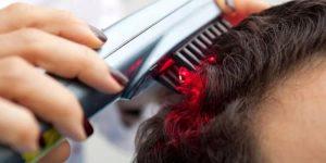 أفضل عيادات تساقط الشعر